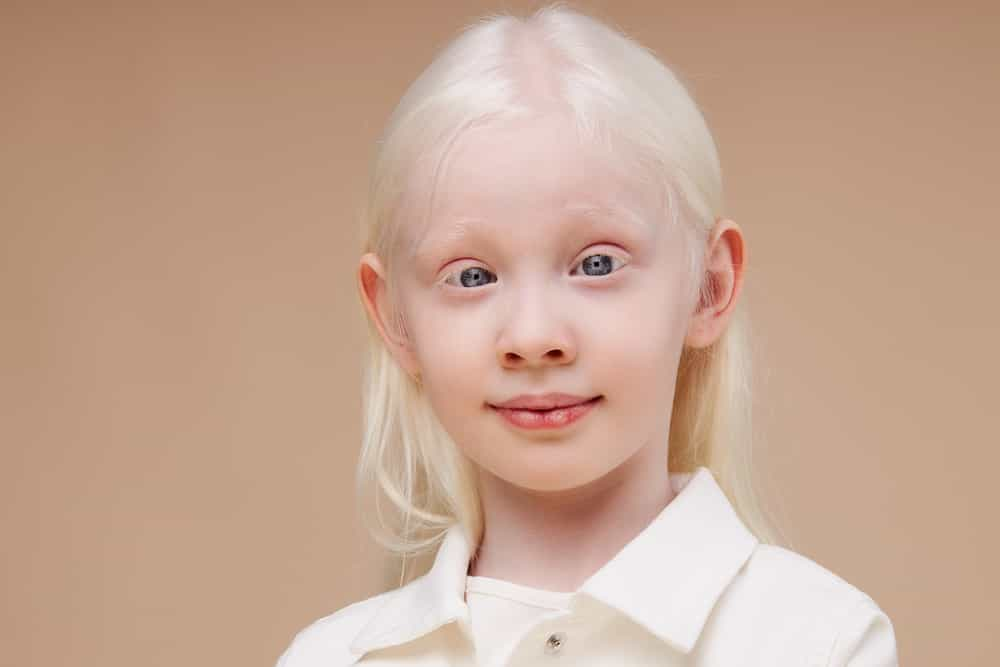 International Albinism Awareness Day UPSC IAS